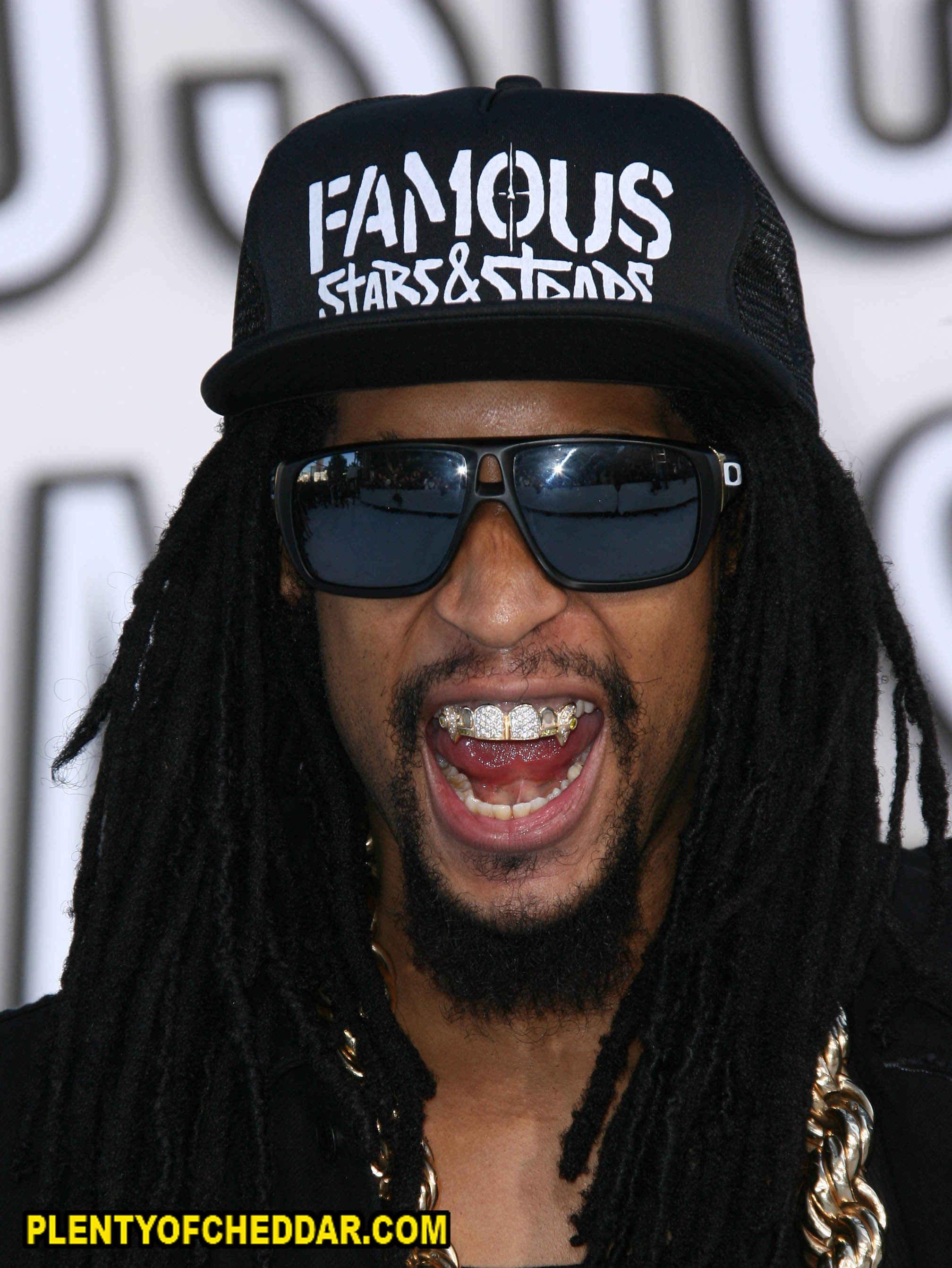 Displaying 18 gt  Images For - Dental Grills   Lil Jon Real Teeth
